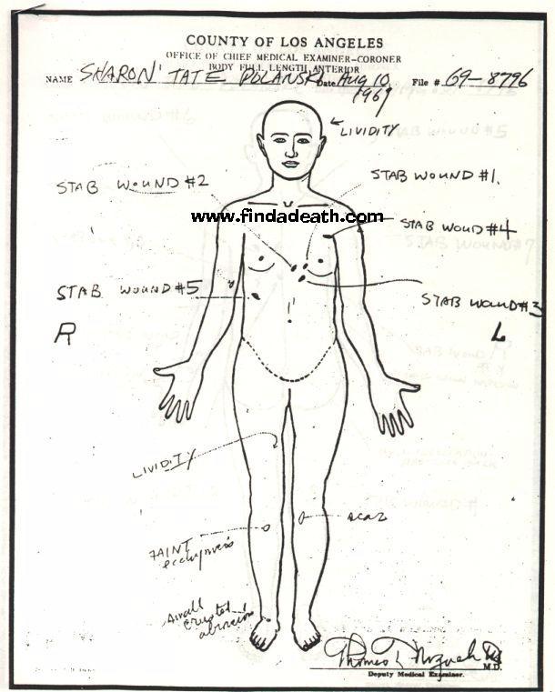 Sharon Tate's Autopsy