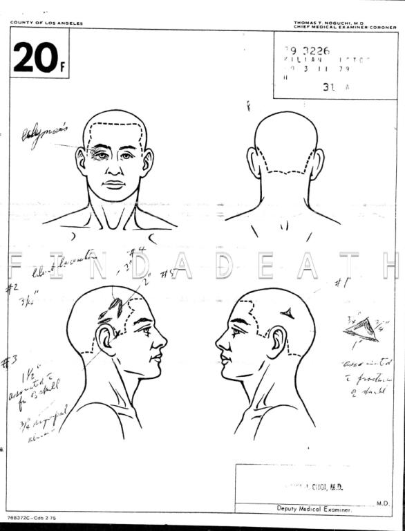 Victor Kilian's Autopsy
